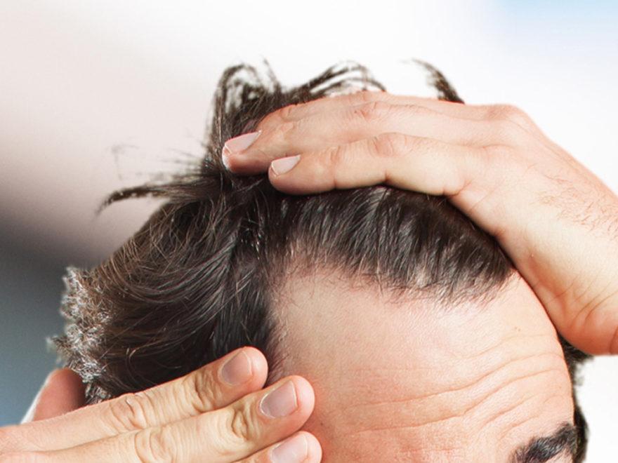 just natural men's hair loss treatment Archives   Blog