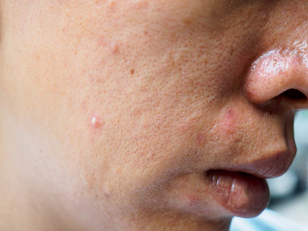 Causes, Prevention and Treatment of Skin Rashes