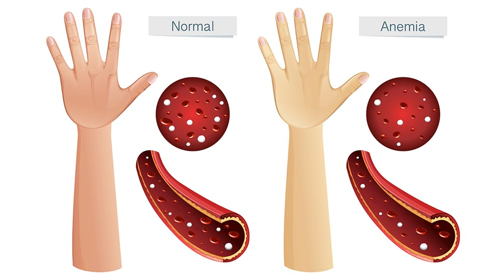 Anemia During Pregnancy: Causes, Symptoms and Treatment